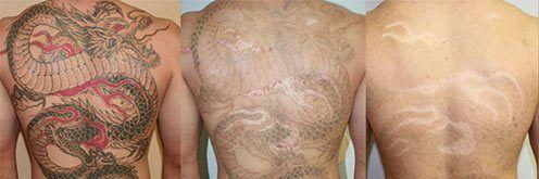 fjerne-tatoveringer