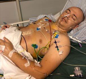 Det er mig efter min første operation